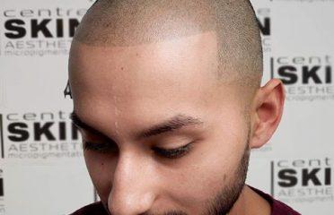 BG Scalp Hair Simulation – Centre SKIN